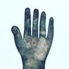 Copper handmedal by Teague